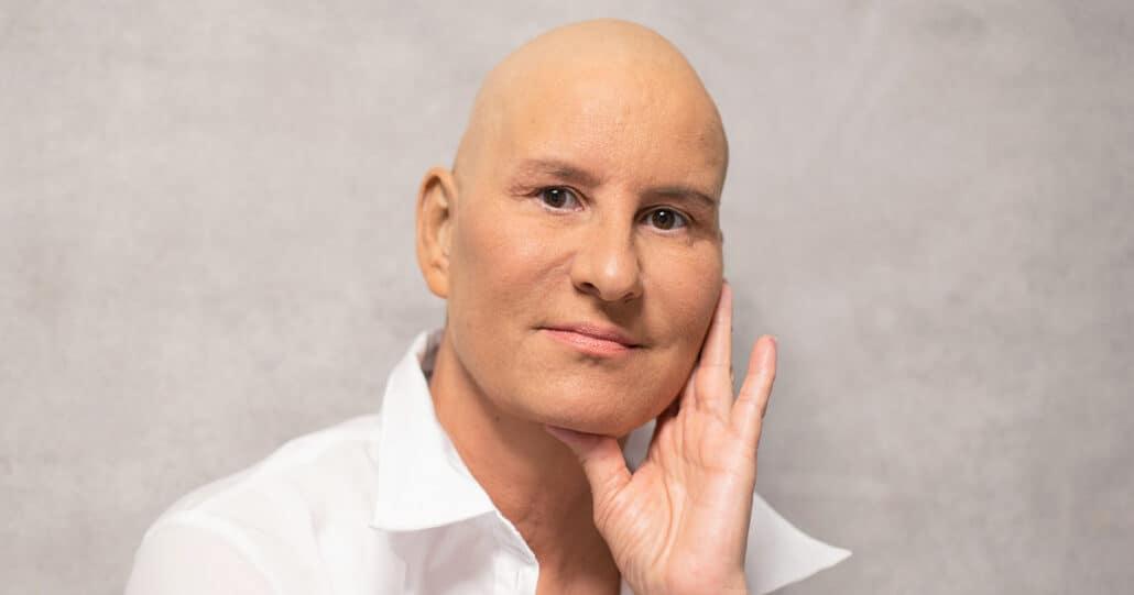 Veranderingen lichaam-Stichting-Optimale-Ondersteuning-bij-Kanker